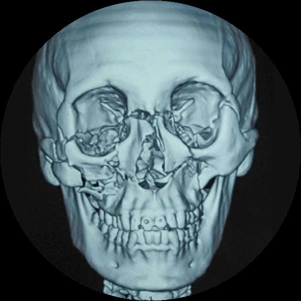 Maxilofacial Jaime Mancera-Image1_D10